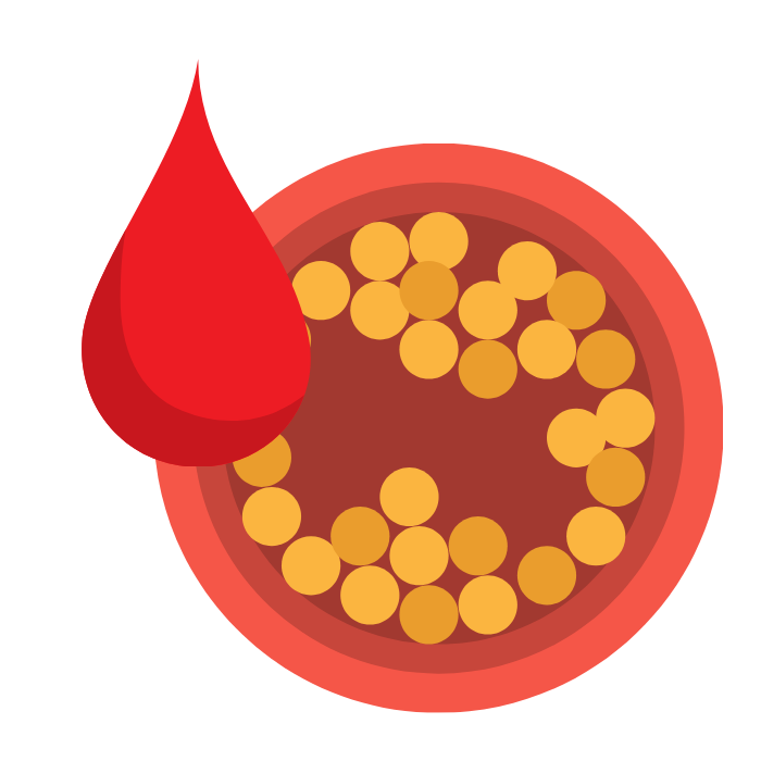 Kwas foliowy foliany źródła gdzie występują cholesterol miażdżyca - bernatowicz dietetyk online nowa sól zaowocuj zdrowiem dieta zdrowe przepisy zdrowe odżywianie